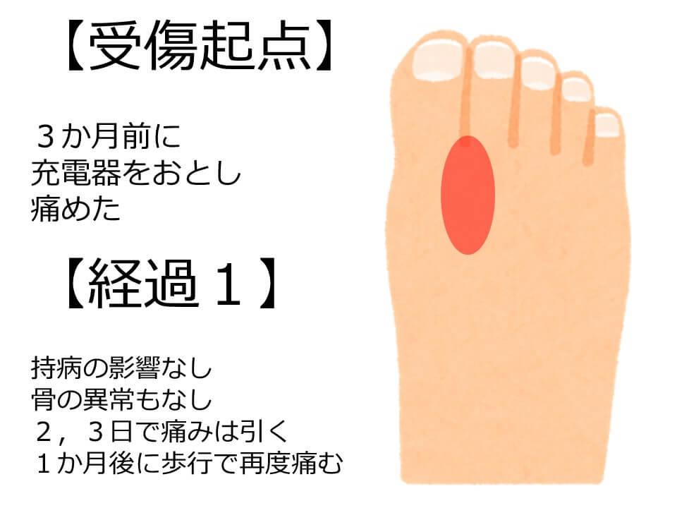人差し指 足 間 親指 痛い の の と が 足の薬指の周りにできる魚の目の原因は靴が合っていないかも