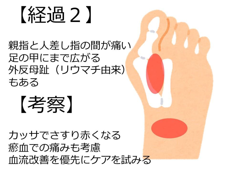 人差し指 足 間 親指 痛い の の と が 親指と人差し指の間が痛いときに考えられる原因と対策について解説